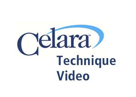 celara-video-thumbnail-copy.jpg